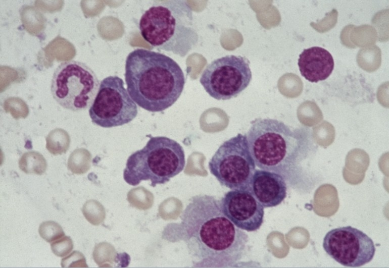 multiple myeloma is a cancer of plasma cells biology essay Selected enzyme research back to enzymes explained listed below are brief summaries of some of the findings from enzyme research this.